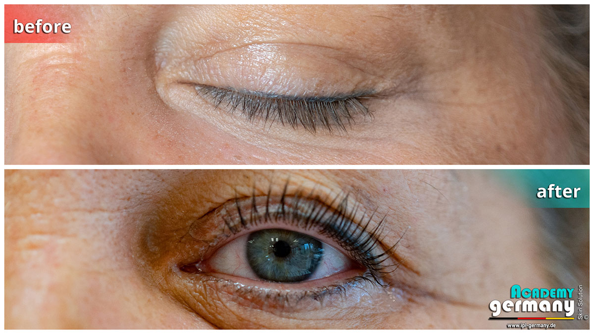 shr-ipl Wimpern-Lifting - ipl_shr_wimpern-lifting31.jpg