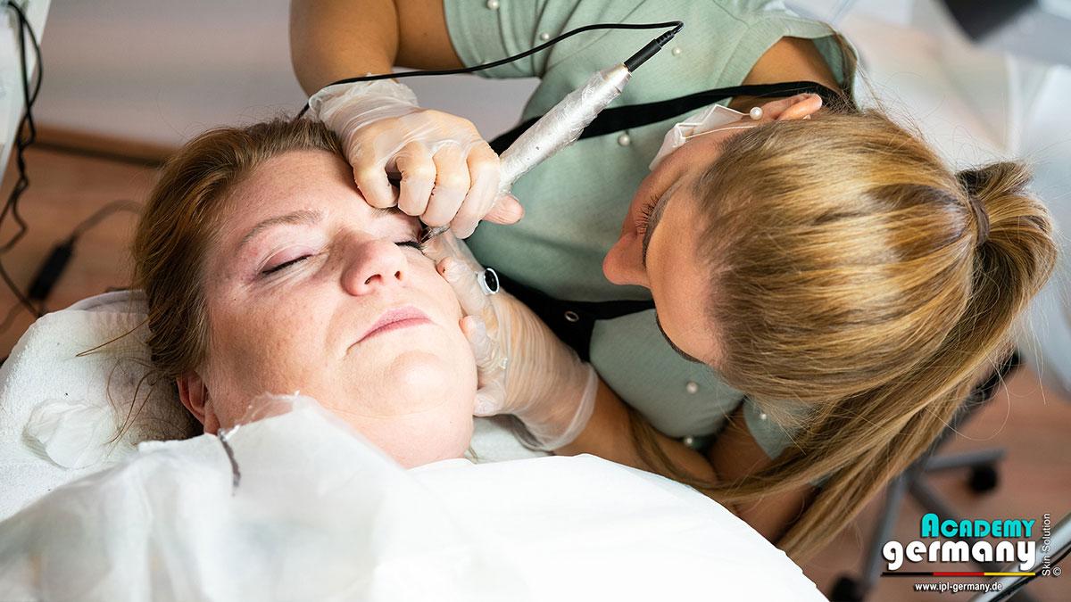 shr-ipl Permanent-Makeup - ipl-shr-permanent-makeup11.jpg