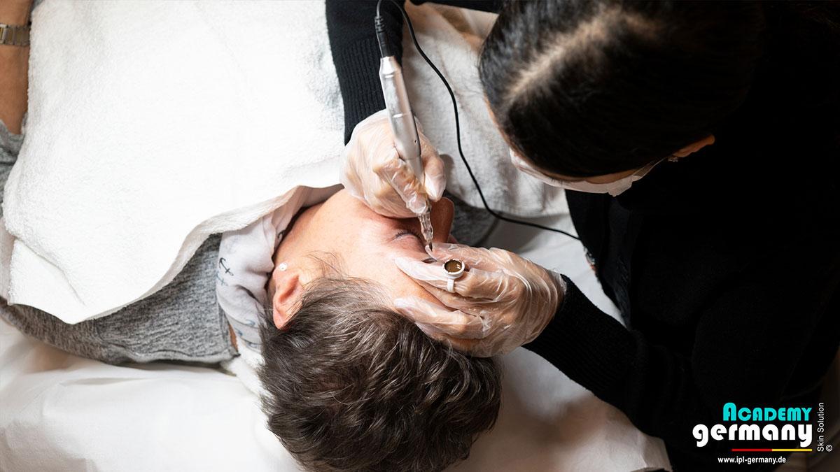 shr-ipl Permanent-Makeup - ipl-shr-permanent-makeup27.jpg