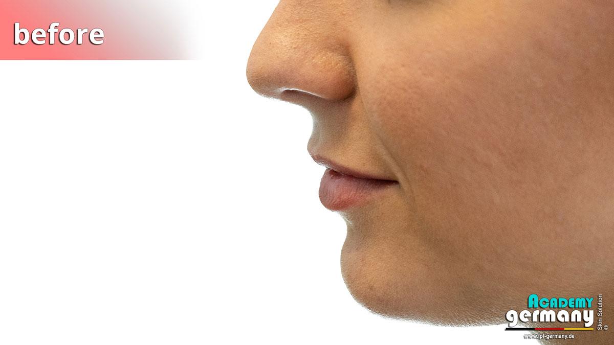 shr-ipl Permanent-Makeup - ipl-shr-permanent-makeup33.jpg