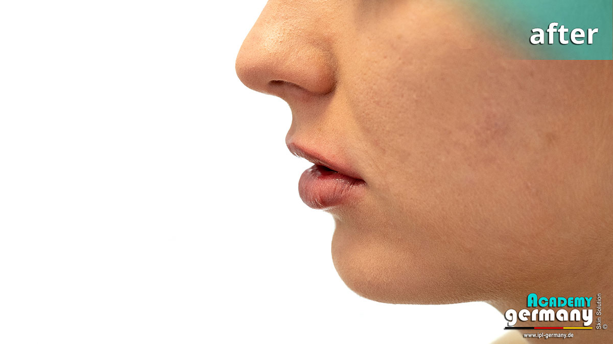 shr-ipl Permanent-Makeup - ipl-shr-permanent-makeup56.jpg
